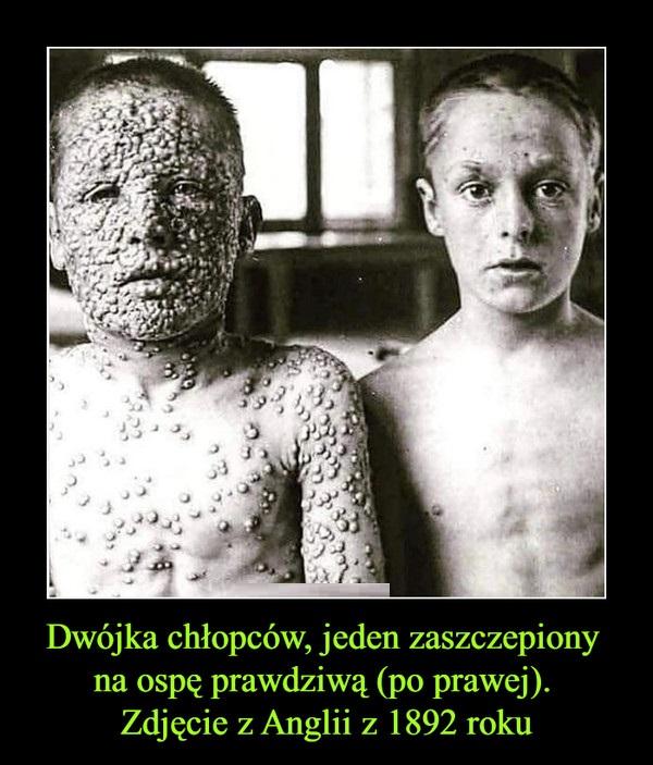 Jeden z nich był zaszczepiony a drugi nie