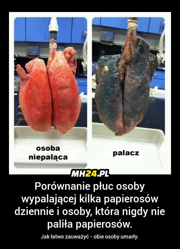 Porównanie płuc palacza i osoby nie palącej